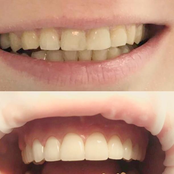 Проблема: Эстетическая функциональная реабилитация верхней челюсти керамическими винирами
