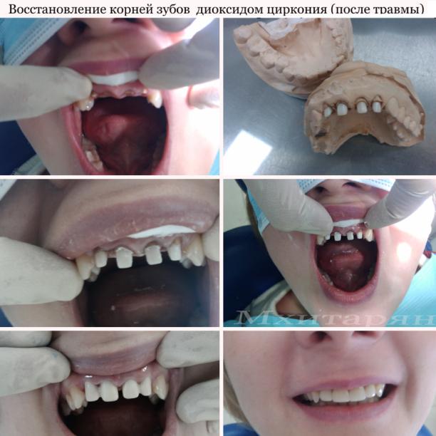 Восстановление корней зубов диоксидом циркония