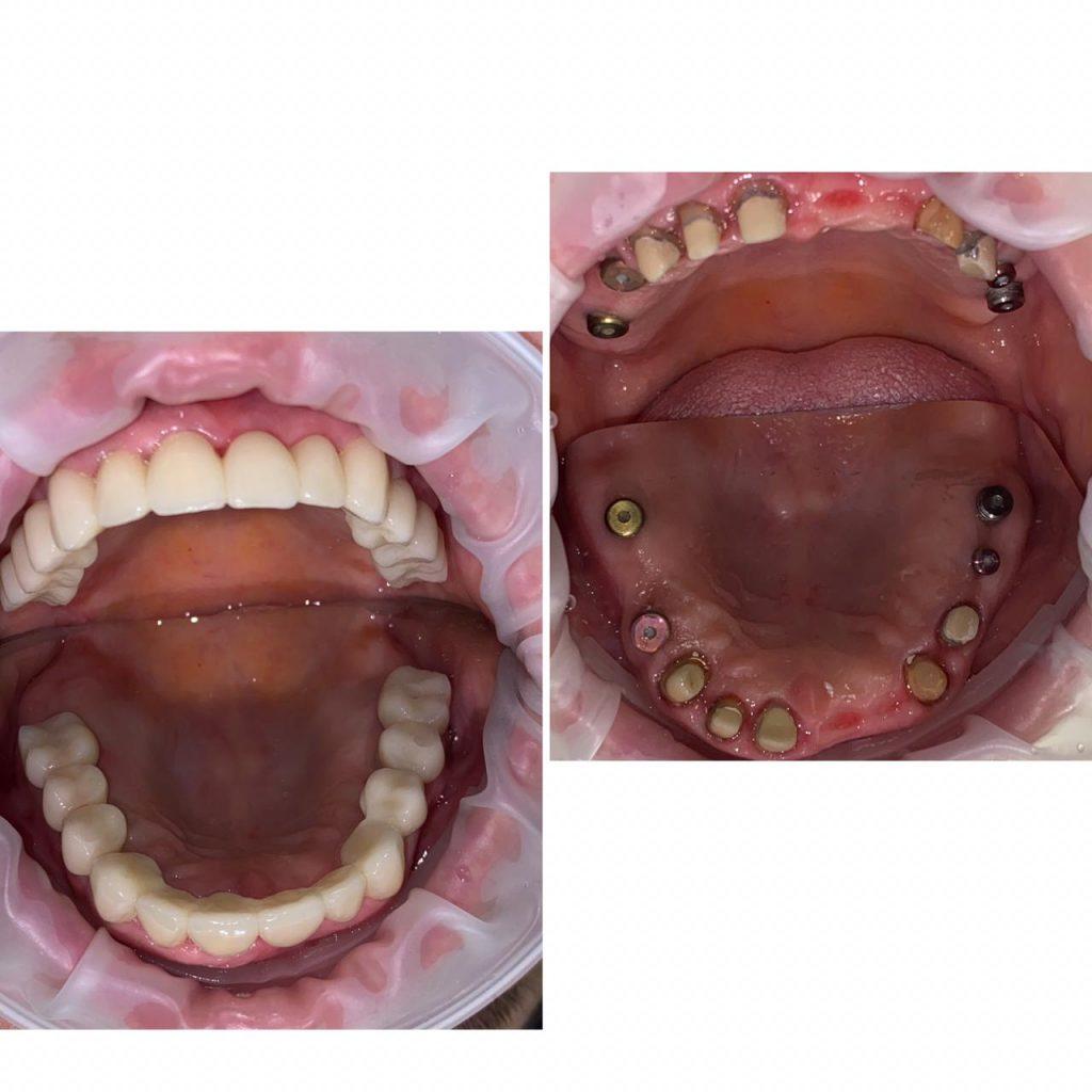 implantaciya-primer2-1024x1024