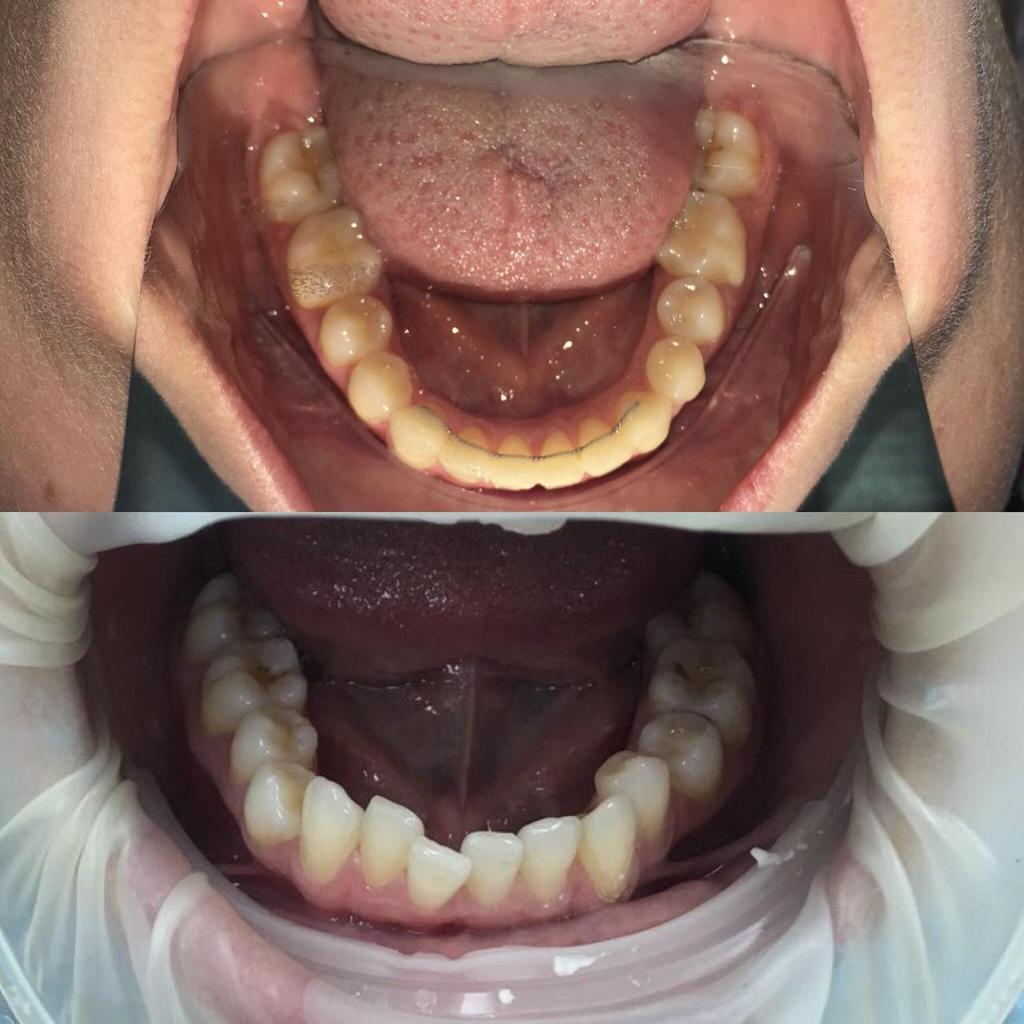 Проблема: Ортодонтическое лечение на брекетах