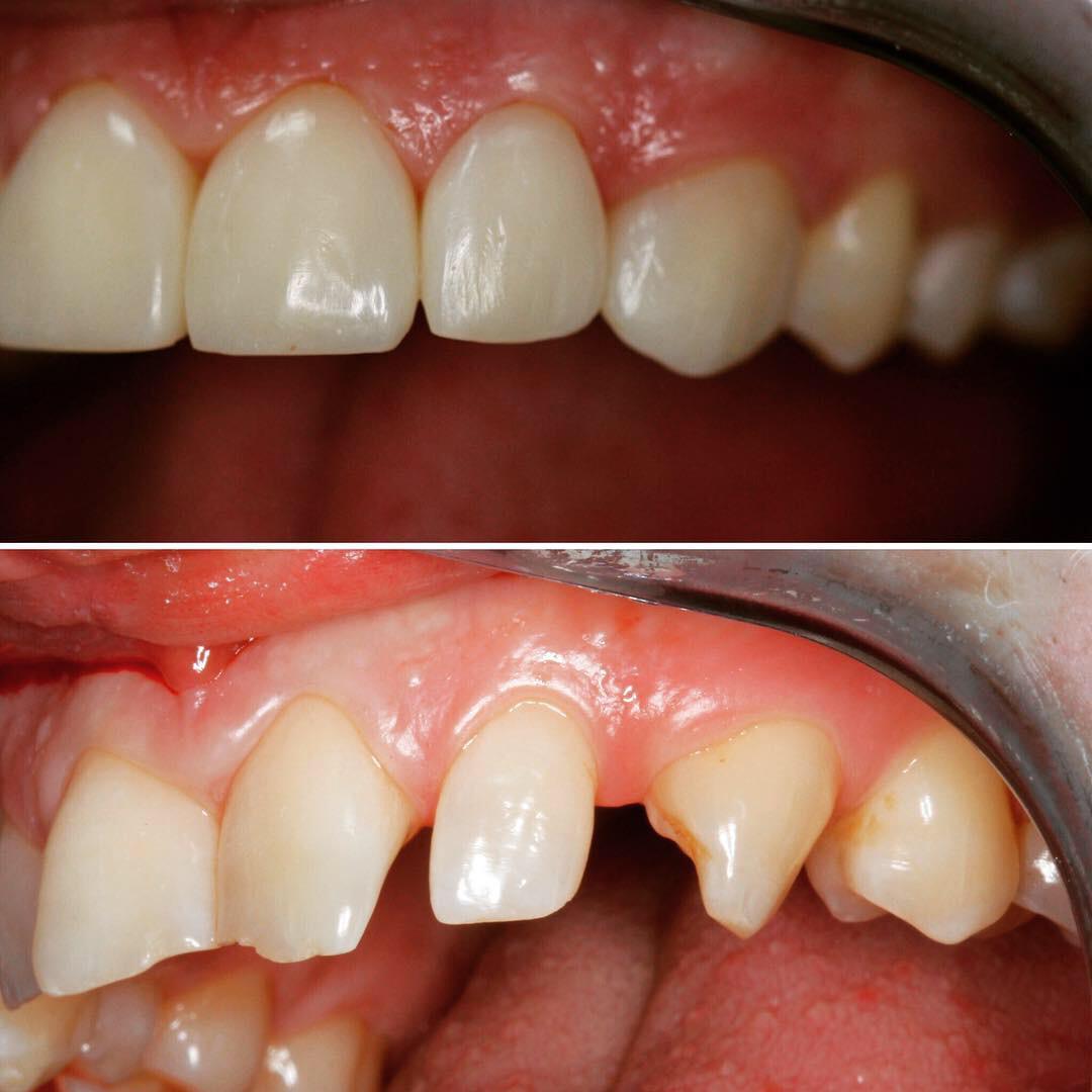 Проблема: Художественная реставрация передних зубов, зона улыбки. Работа доктора Шевцова П.Н.